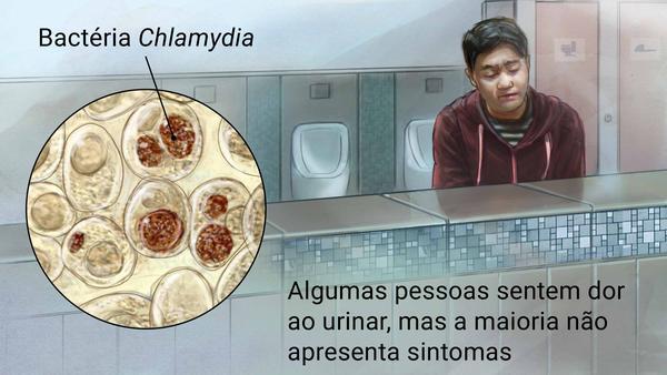 Imagem ilustrativa da doença Clamídia.