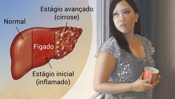 Imagem ilustrativa sobre a doença Hepatite B
