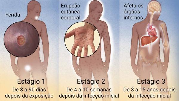 Imagem ilustrativa da doença sífilis